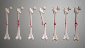 Fractures  Types  Symptoms  Causes And Treatment