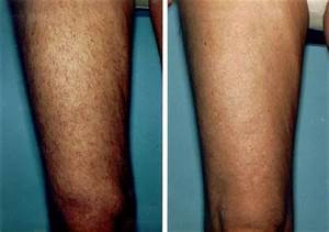 Before and After Photos - LaserHairRemoval-Dallas