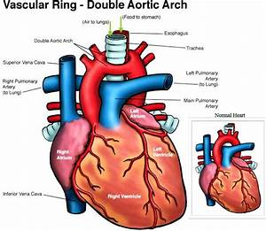 Double Aortic Arch Causes  Symptoms  Diagnosis  Treatment