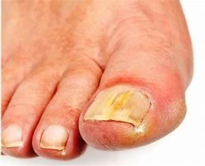 Можно ли грибок ногтя вылечить мазью
