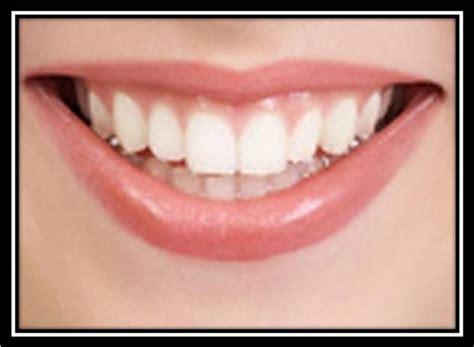 How To Keep Teeth White Naturally