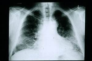 Four Lung Diseases You May Not Be Aware Of