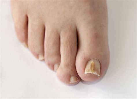 Лечение грибка ногтей на ногах белизной и хлоркой: хорошая идея или нет