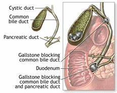 Gallstones and Bile Duct Stones – Life With No Gallbladder ...