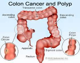 colorectal cancer has metastasized a complete cure is not likely Colorectal Cancer