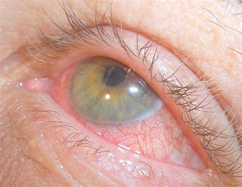 red eye painful sensitivity to light photophobia causes symptoms treatment photophobia