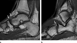 Transverse Tarsal Joint Sprain In A 19