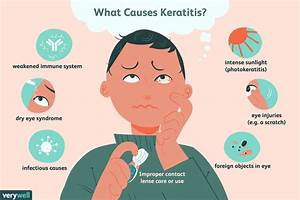Keratitis  Symptoms  Causes  Diagnosis  And Treatment