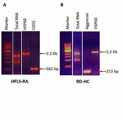 Rna Cell Human Gel Total Agarose Animal