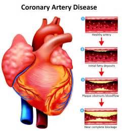 Artery Coronary Heart Disease