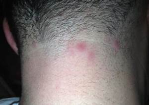 Bumps on Back of Head: Skull, Painful, Neck, after Haircut ...