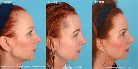 Female Hairline Lowering | Treat thinning hair, Hair