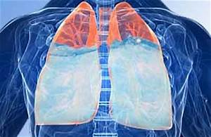 Жидкость в легких при гипертонии