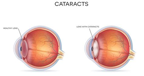Light Therapy Glasses by Cataract Surgery In Wellington Wellington Eye Centre