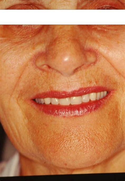 costo protesi mobile dentista pavia 24h costo preventivo