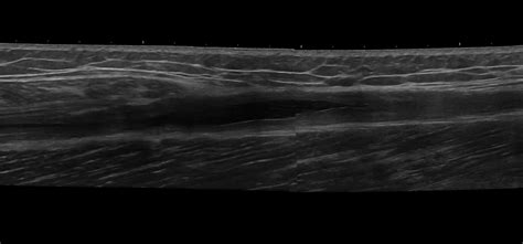 musculoskeletal ultrasound training courses