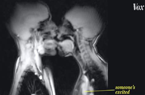 ct scan of sexual act png 653x430