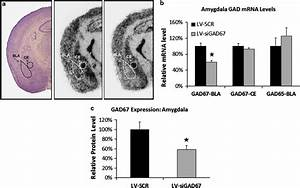 Reduction In Gad67 Mrna And Protein In The Amygdala