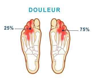 douleur al interieur du pied valerie d reflexologie plantaire