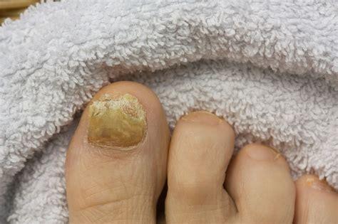 ugly nail   due  psoriasis prairie path