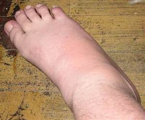 Gout Attack - Right Ankle