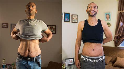 huge weight loss sagging skin remains