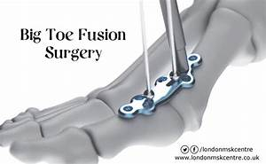 Big Toe Fusion Surgery Form Of Treatment Big Toe Joint