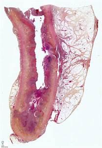 Appendicitis - Humpath Com