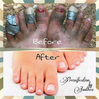 Pedicure Difference Sharpie Nails Natural Funny Nail