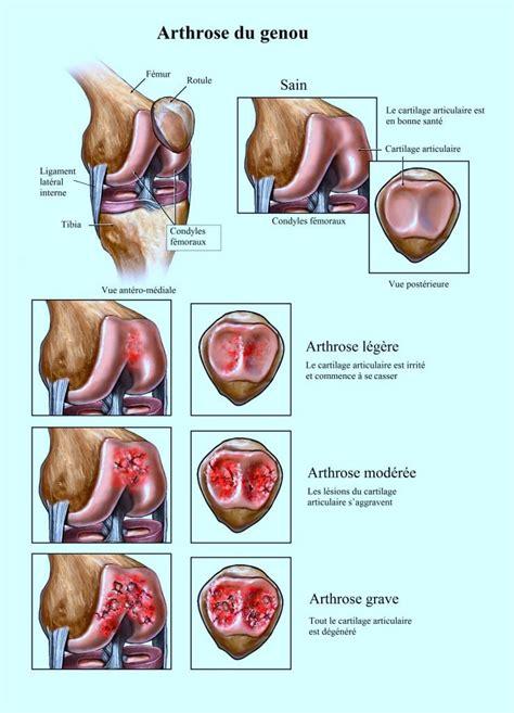 douleur a l interieur du genou douleur au genou arri 232 re interne ou lat 233 ral