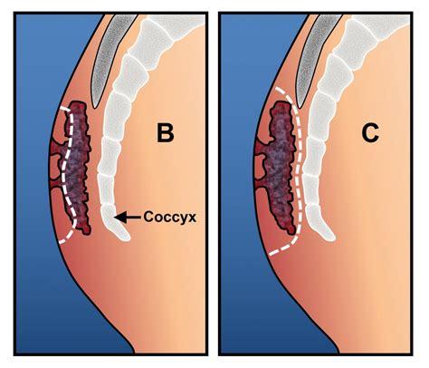 Pilonidal Disease Ascrs