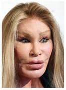 Plastic Surgery Before...Famous Women Look Like Men