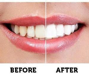 Opulence Teeth Whitening 20 by Best Teeth Whitening Gel Review 2018 Dentalsreview