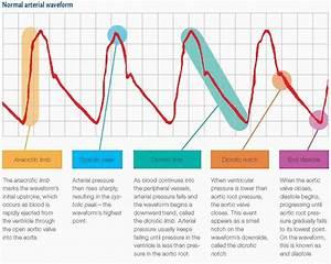 Ear Diagram No Lines