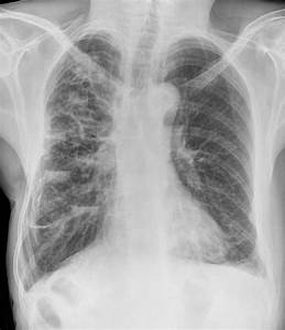 Bronchiectasis refers to abnormal dilatation of the ...