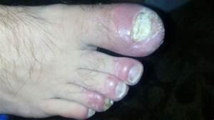 Грибок ногтей лучшее средство лечения