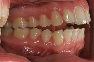 Related Keywords & Suggestions for severe malocclusion