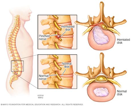 disk herniated disc discs pain surgery nerve sciatica lumbar causes spine exercises spinal stretches pinched clinic types herniation paso el