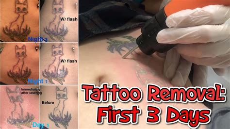 tattoo removal   days