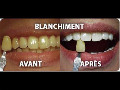 comment avoir des toilettes blanches recette pour avoir des dents plus blanches