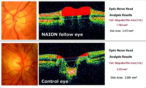Optic Disc Evaluation By Optical Coherence Tomography In