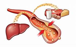 Лекарство от холестерина не влияющее на печень