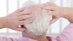 Balding: Causes, signs and remedies for hair loss