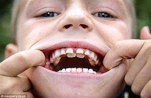Eight-year-old 'Jaws' has two rows of teeth | Daily Mail ...