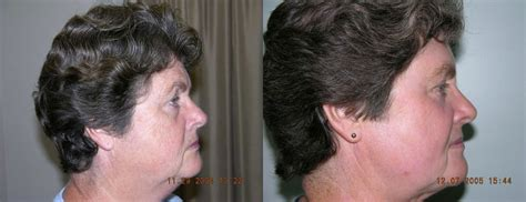 face advanced cosmetic surgery greenville sc