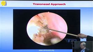 Endoscopic Endonasal Anatomy And Approaches To Sella And