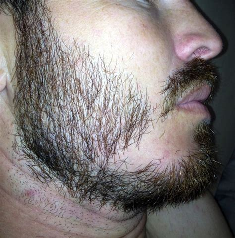 bearded shedding in patches growing beard with some patches in hair
