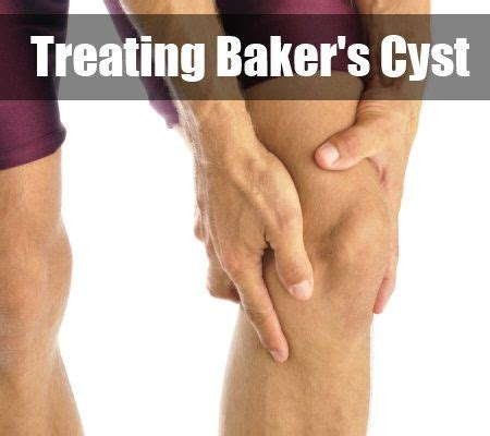 treating bakers cyst bakers cyst cysts bakers cyst