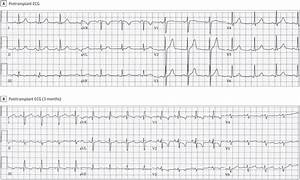 Profound Electrocardiogram Changes In A Patient With Liver