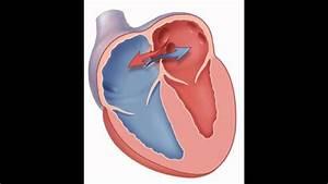 Heart Sounds Atrial Septal Defect